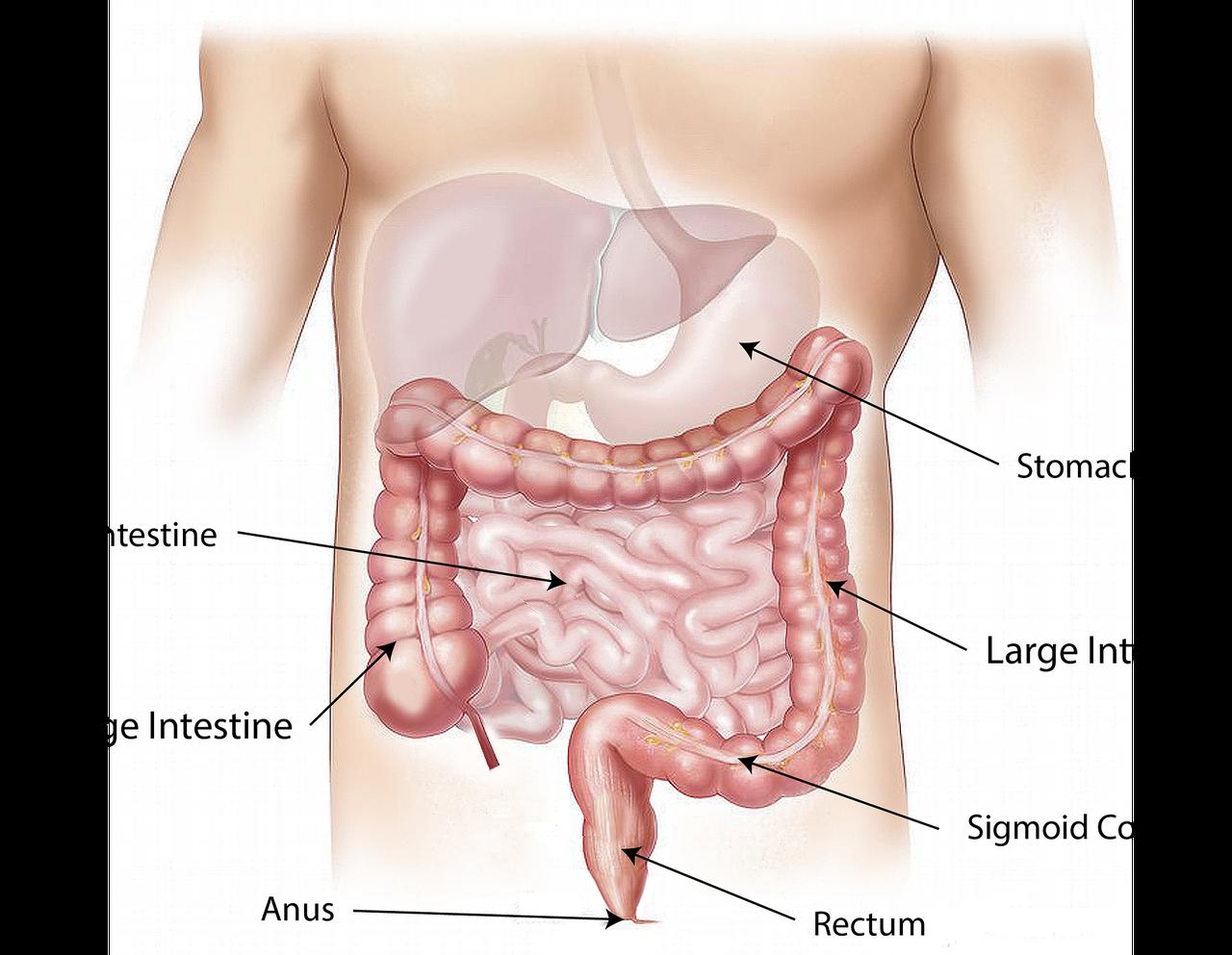 結腸直腸腺腫の切除による腸内細菌叢変化